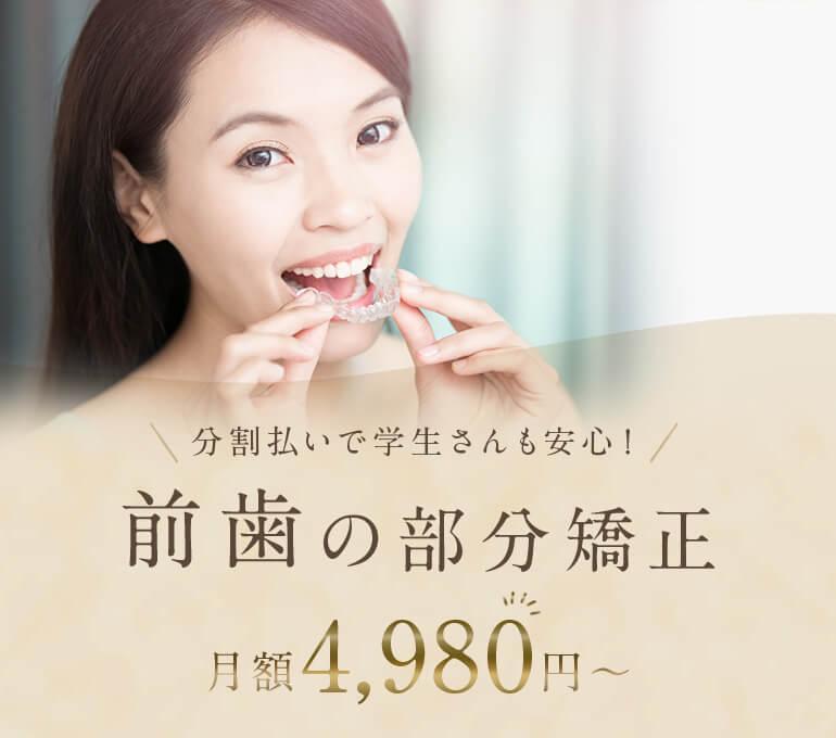 分割払いで学生さんも安心!前歯の部分矯正 月額4,980円~