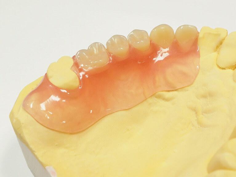 金属のバネ(クラスプ)を使用しない部分入れ歯