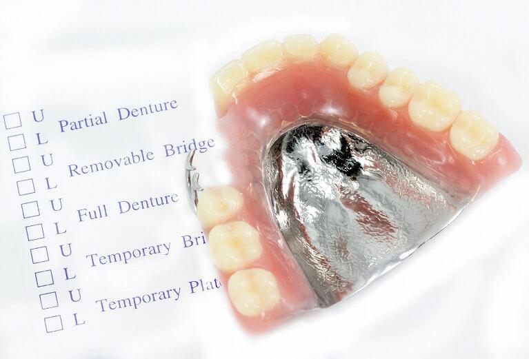 金属(コバルトクロム)でできている入れ歯