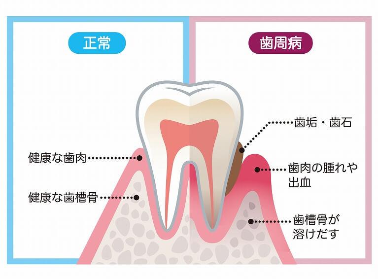 京都市右京区のデンタルクリニック川村では、歯周病治療に力を入れています。