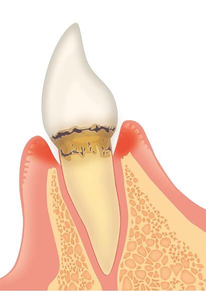 軽度歯周炎|歯周病