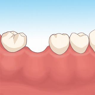 奥歯の脱落により前歯に隙間が空いてきた