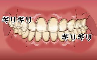 歯ぎしりによる歯の移動により前歯に隙間が空いてきた