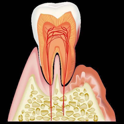 歯周病による歯茎の下降で前歯に隙間が空いてきた
